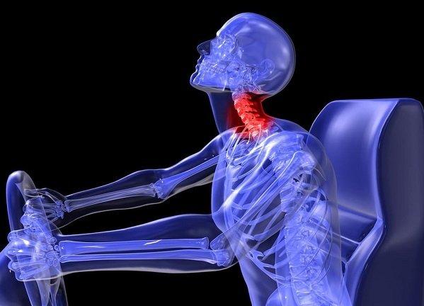Como se produce el latigazo lumbar o lumbalgia postraumatica