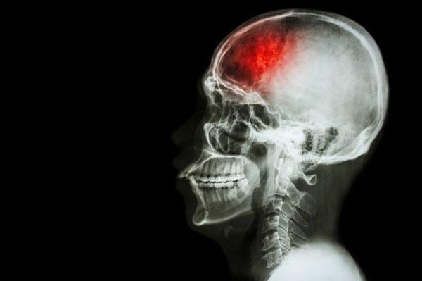 Daños en el cráneo